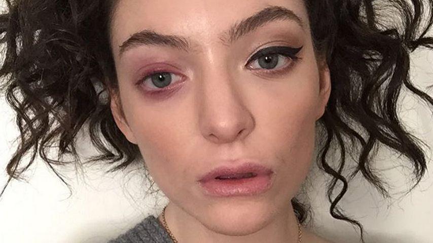 """Lorde schockt mit Foto: """"Mein Körper fällt auseinander!"""""""