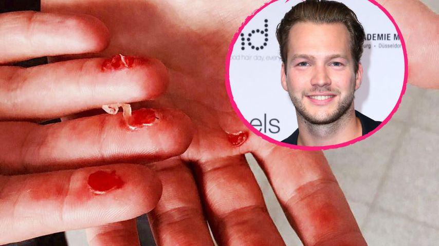Blutige Blasen: Ex-Bachelorette-Marvin postet Ekel-Foto!