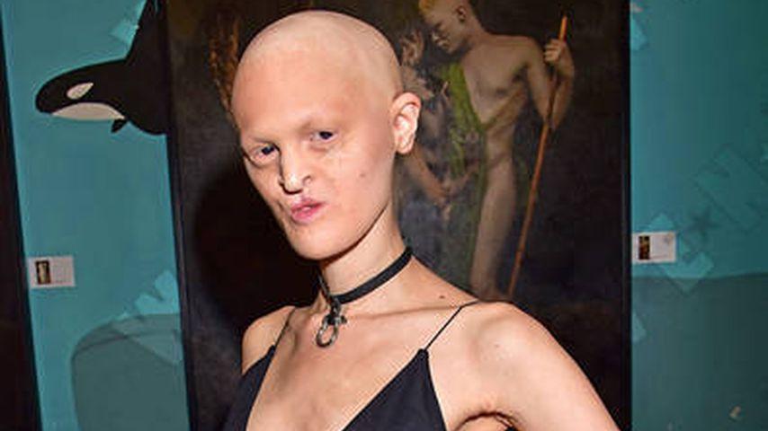 Model mit Erbkrankheit: Melanie Gaydos verzaubert Berlin!