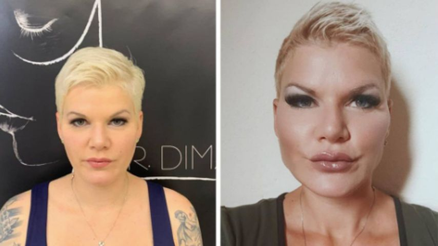 Superhappy: Melanie Müller zeigt Gesicht nach Beauty-OPs