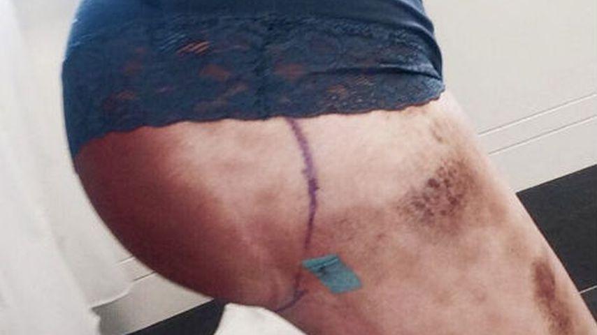 Melody Haase nach ihrem Brazilian Butt Lift