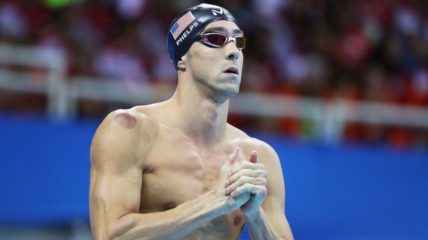 Das steckt hinter den komischen Flecken von Michael Phelps!