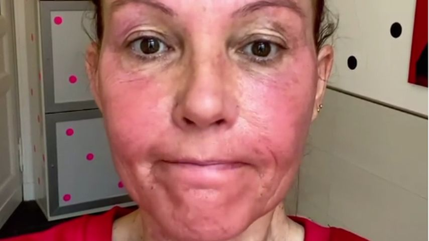 Knallrotes Gesicht: Natascha Ochsenknecht hatte Creme-Panne
