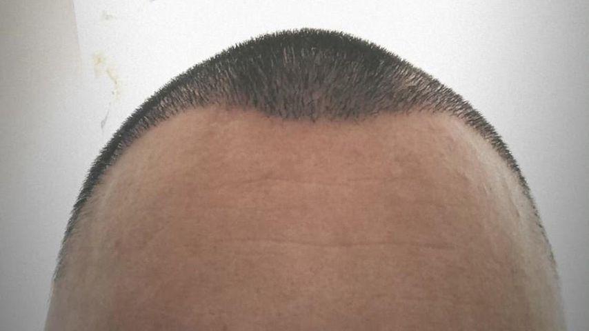 Niklas Schröders Haare