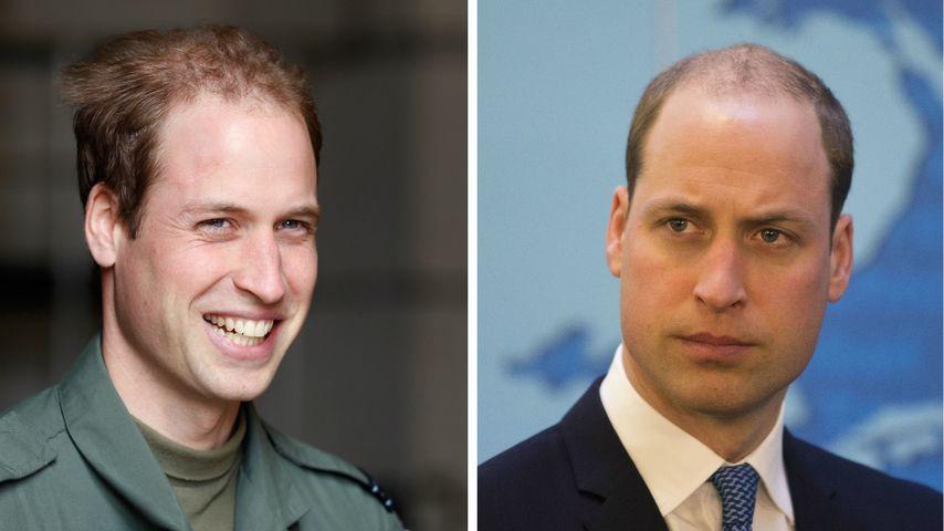 Fast schon kahl: Prinz William kämpft gegen lichte Mähne