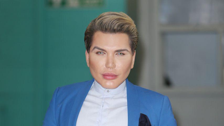 Real-Life-Ken Rodrigo: Gesicht mit Plazenta unterspritzt!