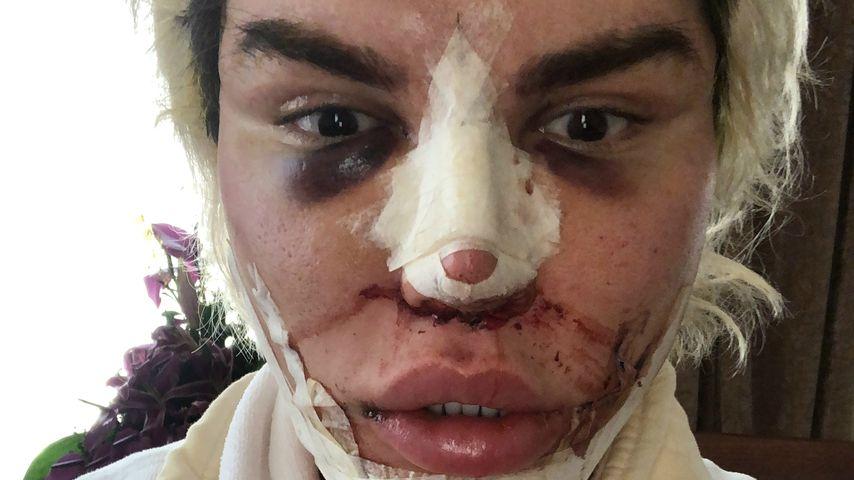 Rodrigo Alves nach seiner elften Nasen-OP