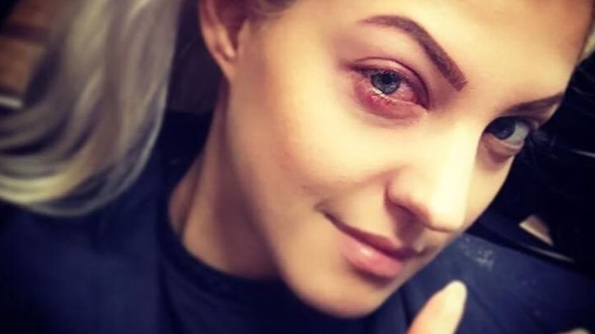 """""""Es tut so weh!"""": Sarah Nowak postet schlimmes Augen-Foto"""