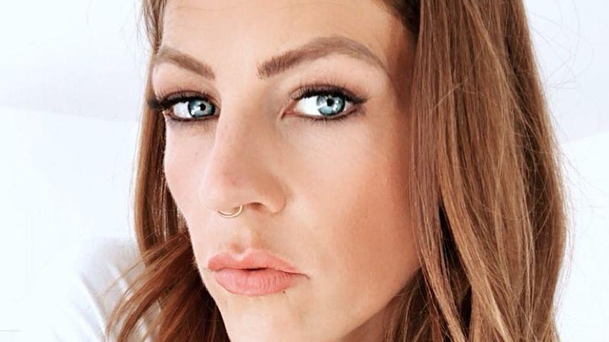 Botox-Gönnung: Darum war BTN-Star Saskia beim Beauty-Doc
