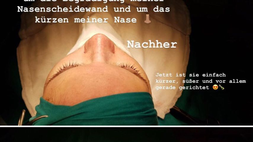 Shirin David zeigt ein Vorher-Nachher-Bild ihrer Nase
