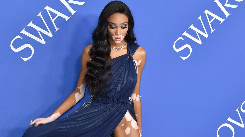 Winnie Harlow bei den CFDA Awards in New York