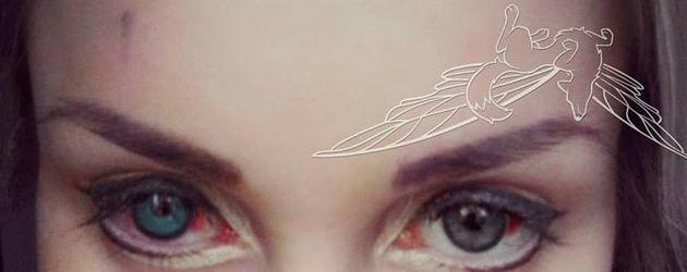 Pixee Fox mit blutunterlaufenen Augen nach ihrer Operation